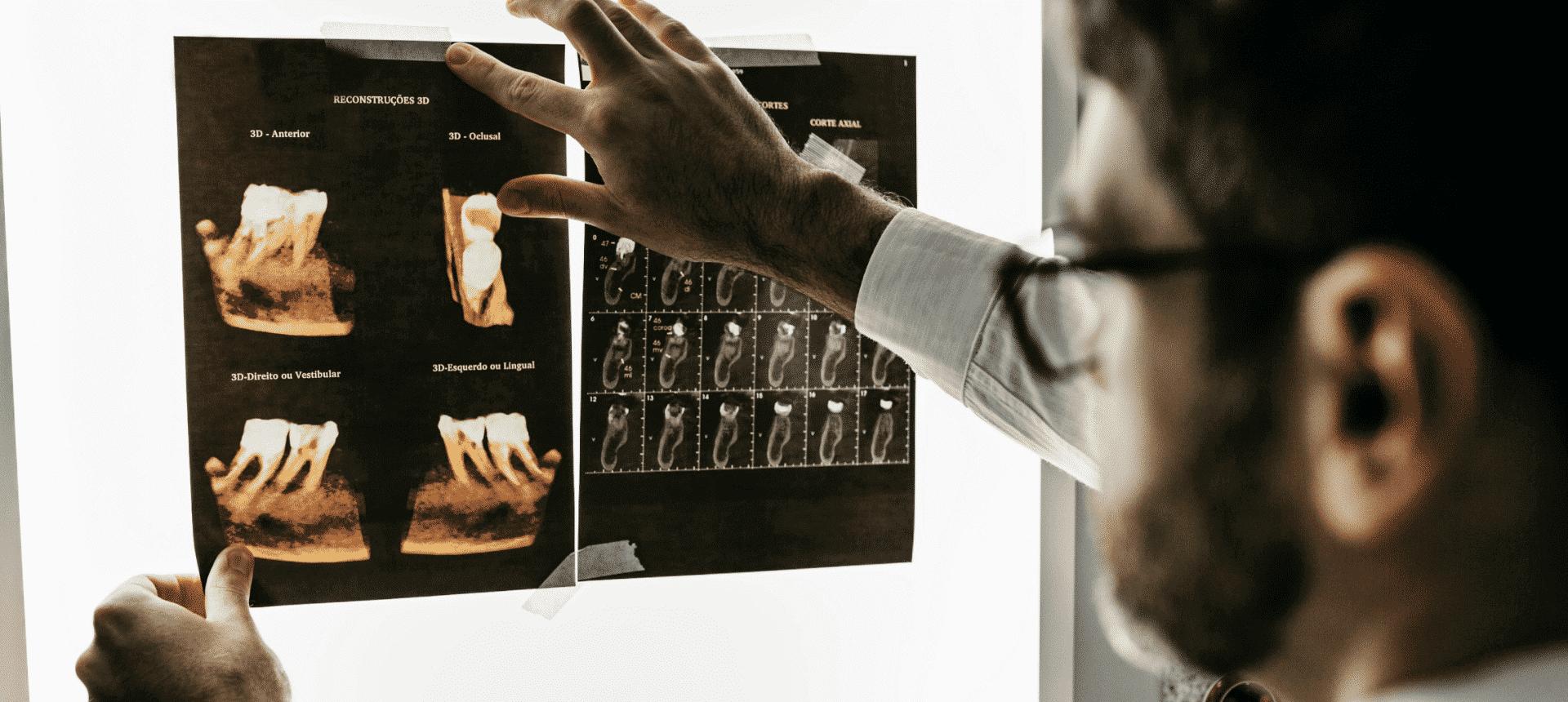 BEGO Implant Systems: Ein Beispiel aus der Praxis